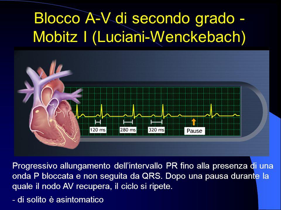 Blocco A-V di secondo grado - Mobitz I (Luciani-Wenckebach)