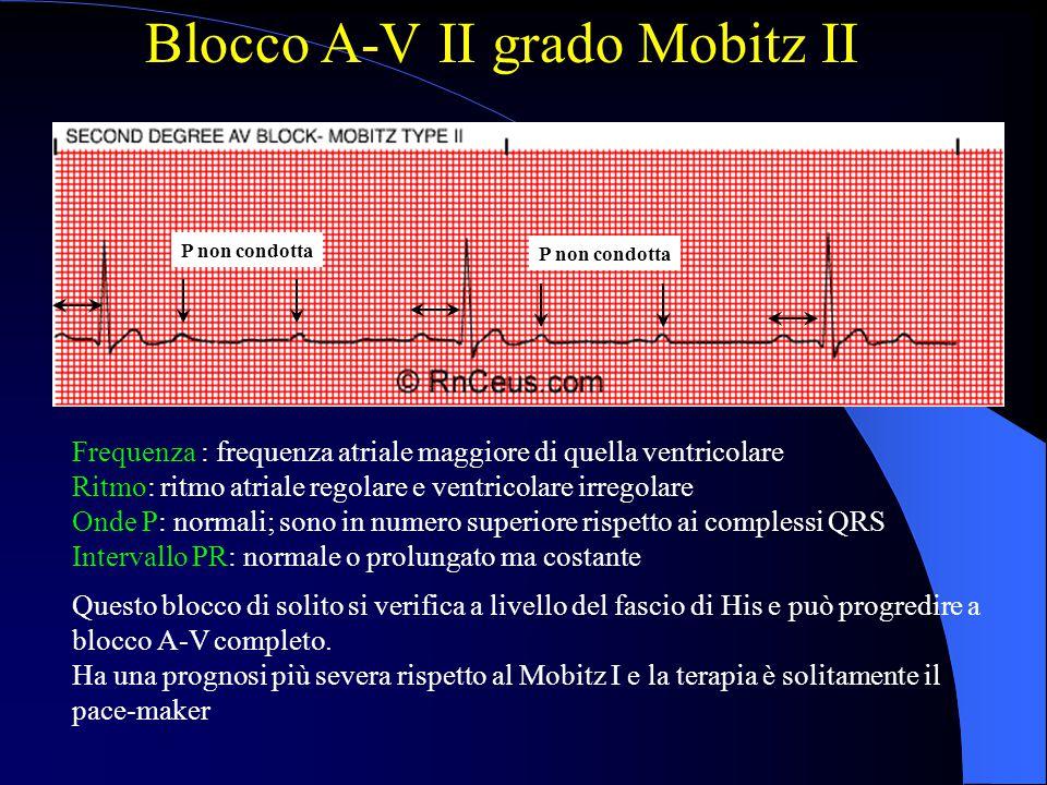 Blocco A-V II grado Mobitz II