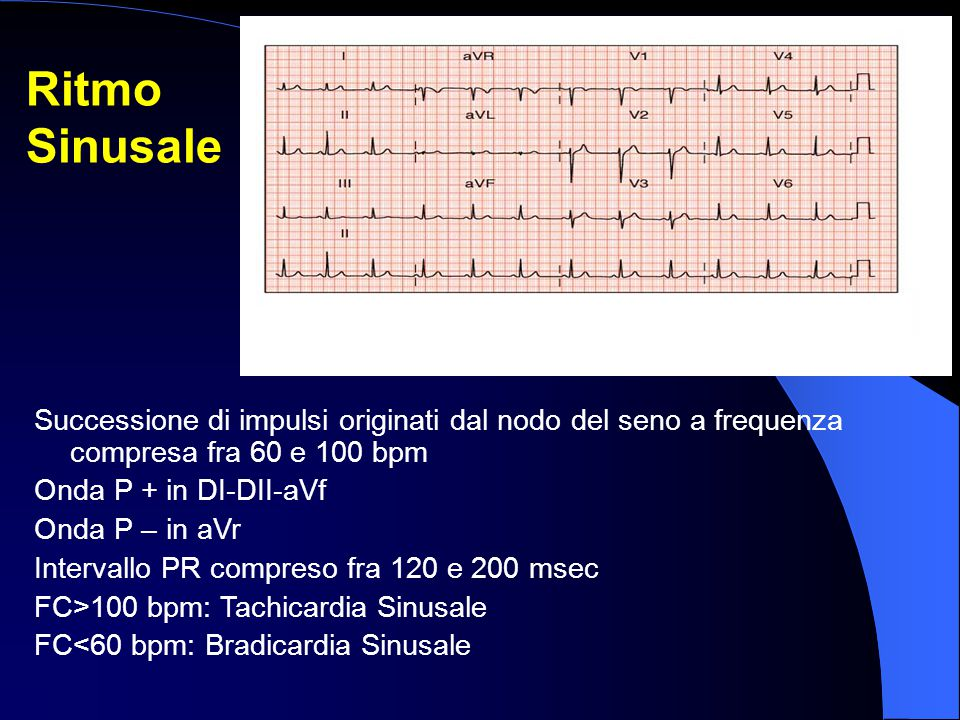 Ritmo Sinusale. Successione di impulsi originati dal nodo del seno a frequenza compresa fra 60 e 100 bpm.