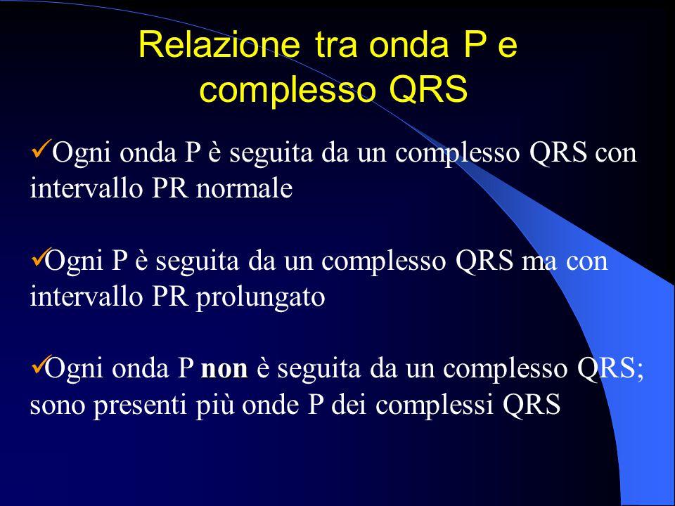 Relazione tra onda P e complesso QRS