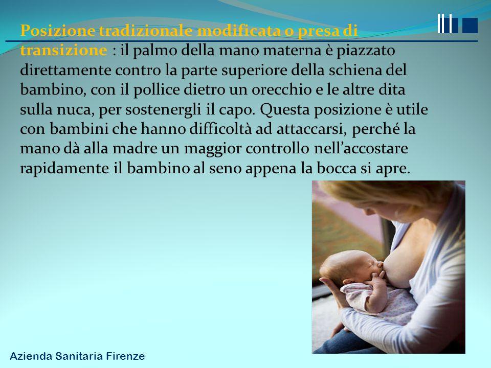 Posizione tradizionale modificata o presa di transizione : il palmo della mano materna è piazzato direttamente contro la parte superiore della schiena del bambino, con il pollice dietro un orecchio e le altre dita sulla nuca, per sostenergli il capo.