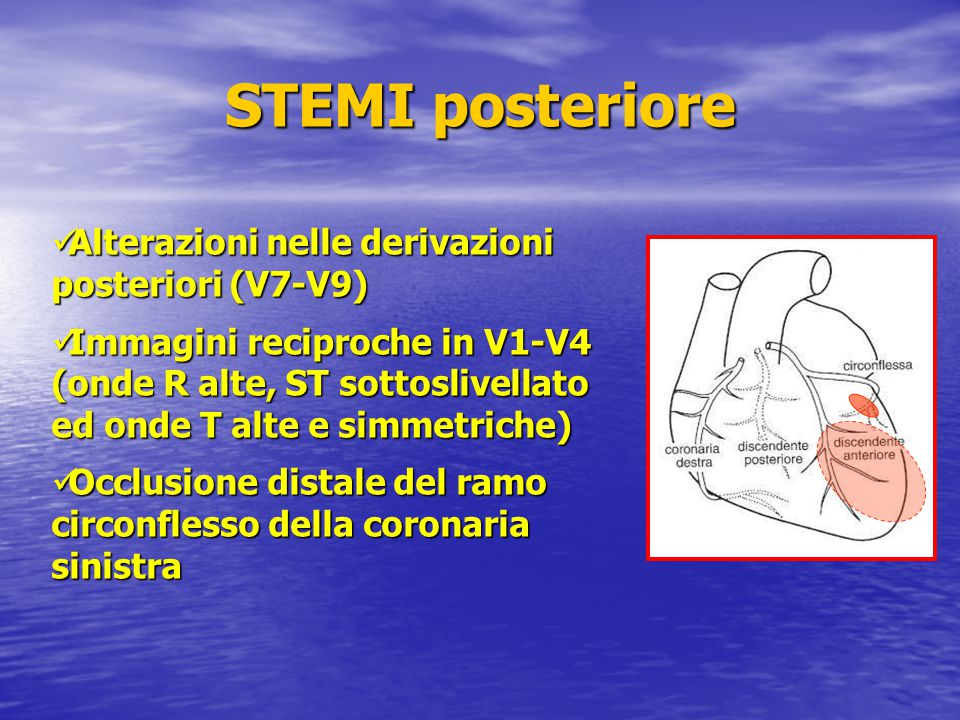 STEMI posteriore Alterazioni nelle derivazioni posteriori (V7-V9)