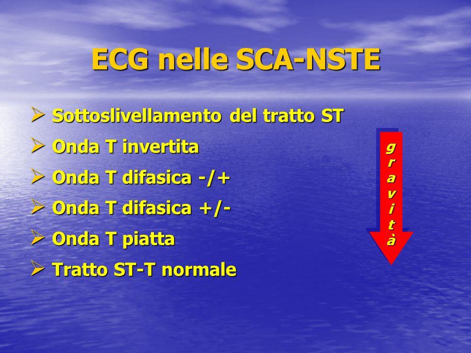 ECG nelle SCA-NSTE Sottoslivellamento del tratto ST Onda T invertita