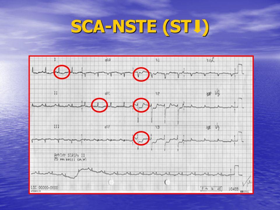 SCA-NSTE (ST )