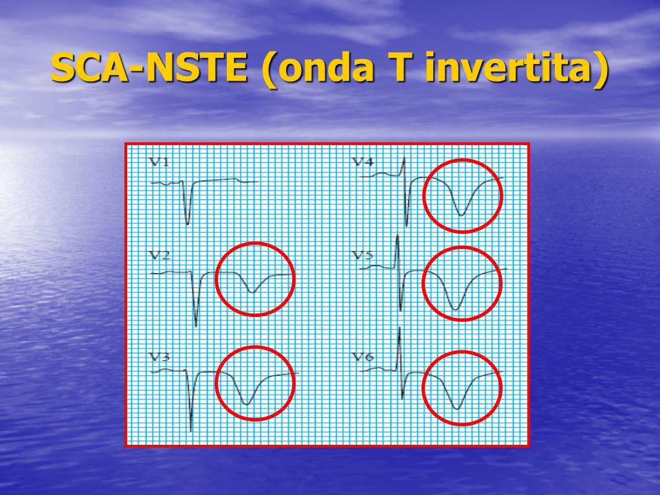 SCA-NSTE (onda T invertita)