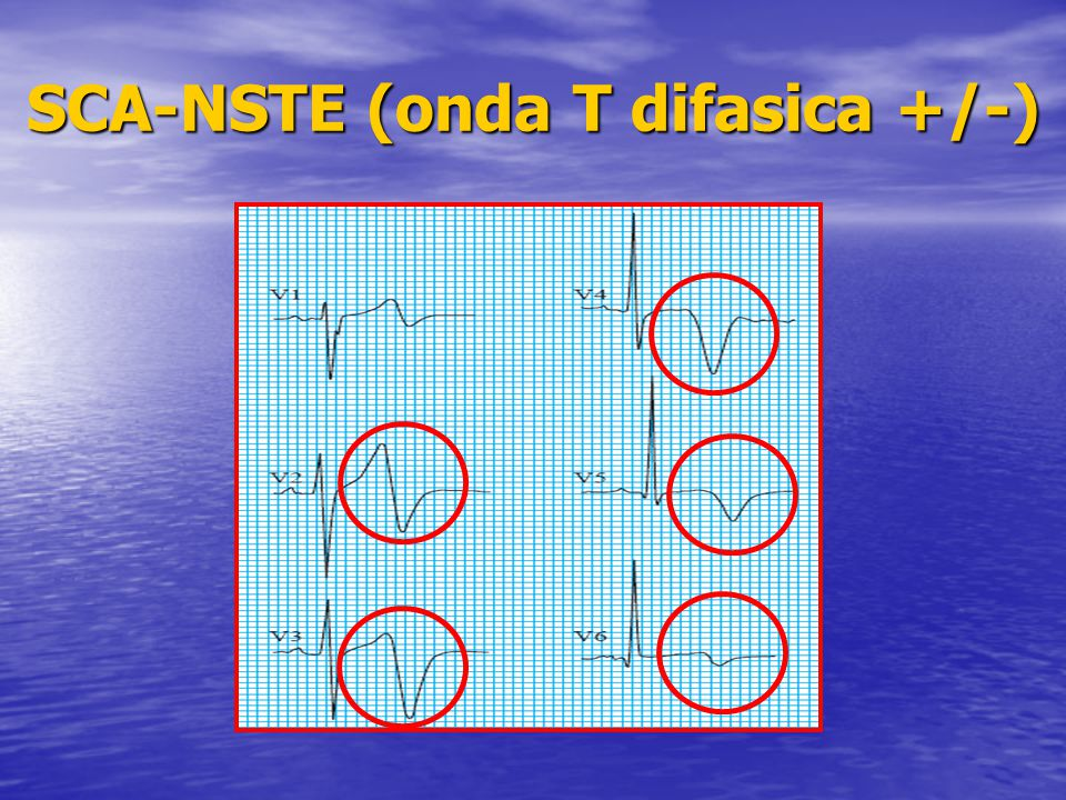 SCA-NSTE (onda T difasica +/-)