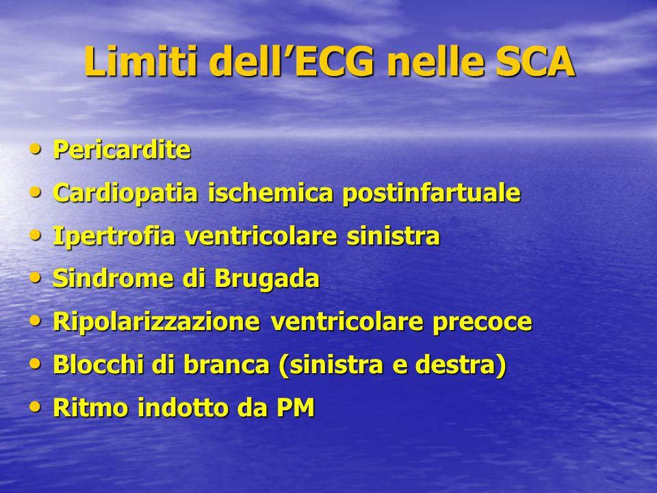Limiti dell'ECG nelle SCA