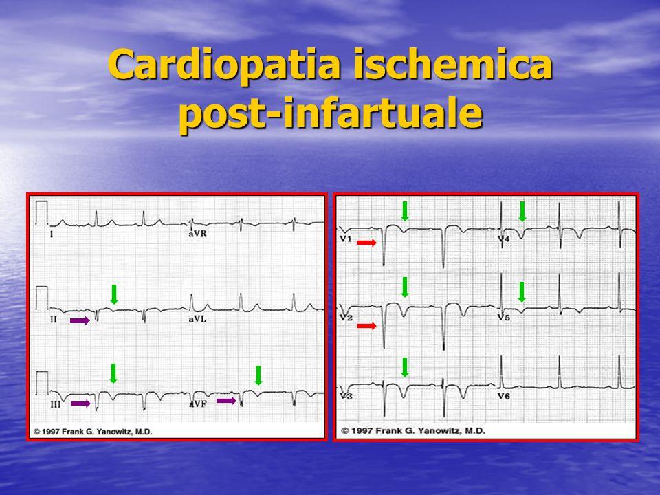 Cardiopatia ischemica post-infartuale