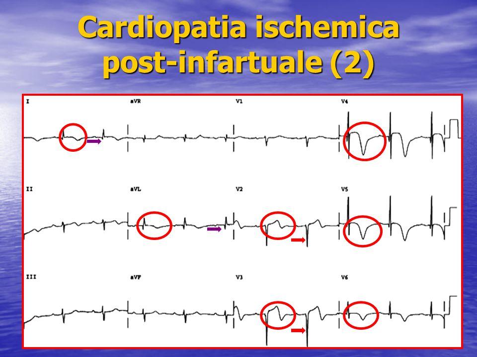 Cardiopatia ischemica post-infartuale (2)