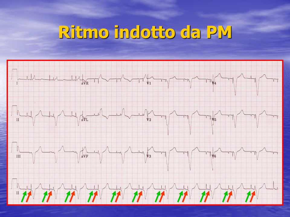 Ritmo indotto da PM