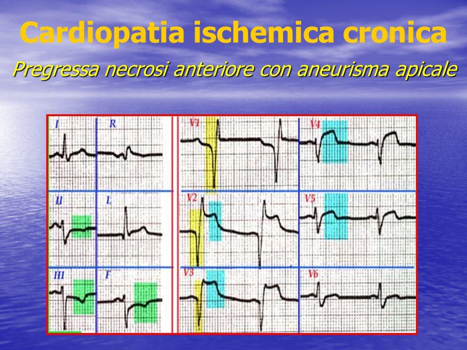 Cardiopatia ischemica cronica