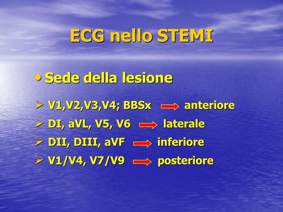 ECG nello STEMI Sede della lesione V1,V2,V3,V4; BBSx anteriore