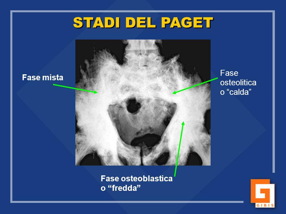 STADI DEL PAGET Fase Fase mista osteolitica o calda