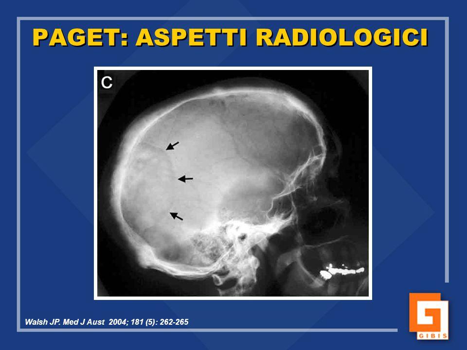 PAGET: ASPETTI RADIOLOGICI