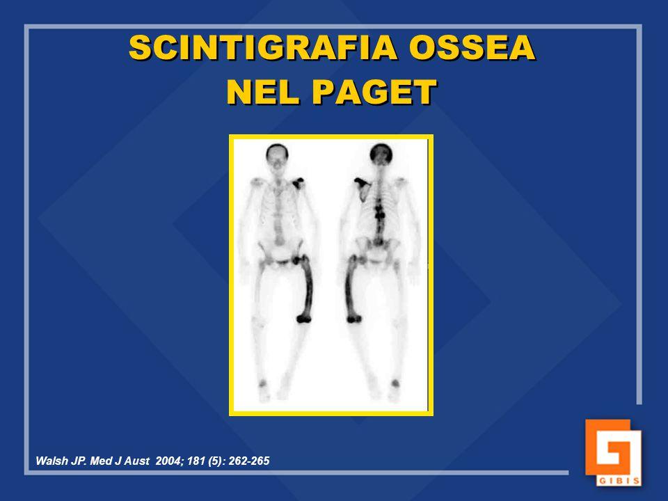SCINTIGRAFIA OSSEA NEL PAGET