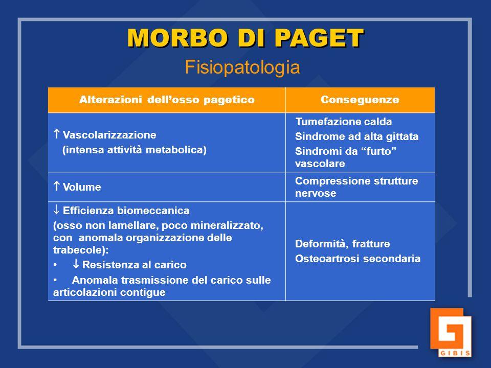 Alterazioni dell'osso pagetico