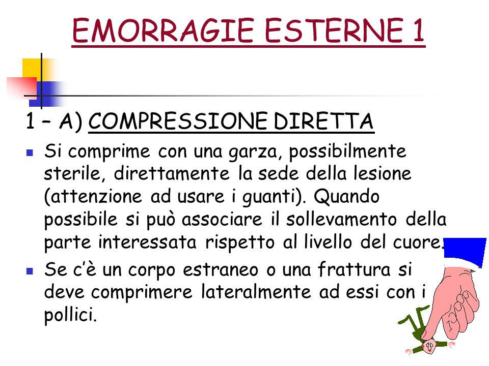EMORRAGIE ESTERNE 1 1 – A) COMPRESSIONE DIRETTA