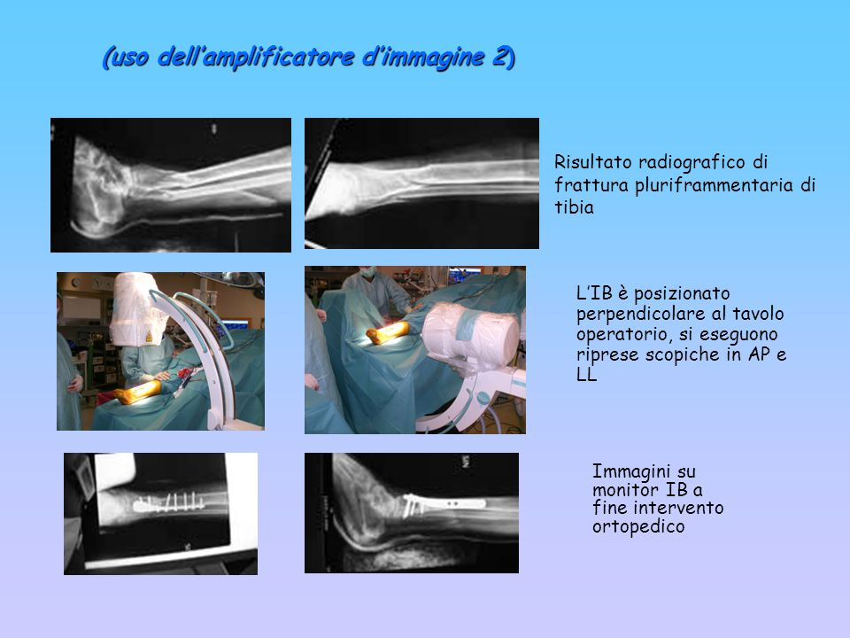Risultato radiografico di frattura pluriframmentaria di tibia