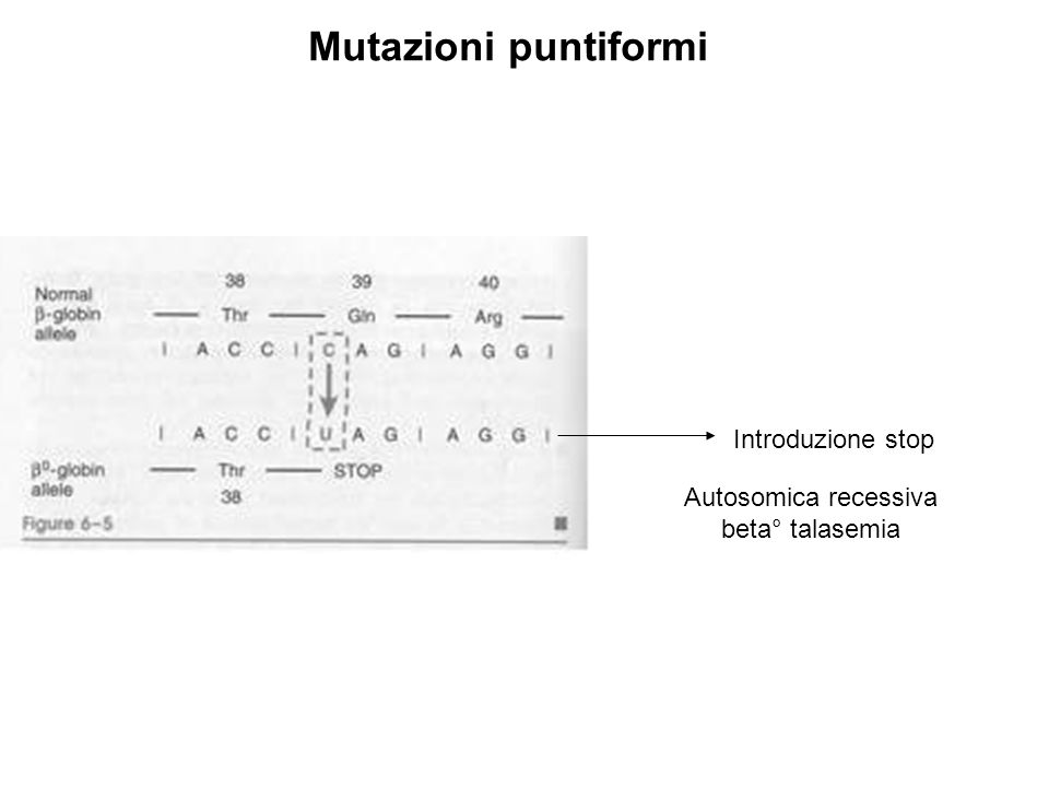 Mutazioni puntiformi Introduzione stop Autosomica recessiva