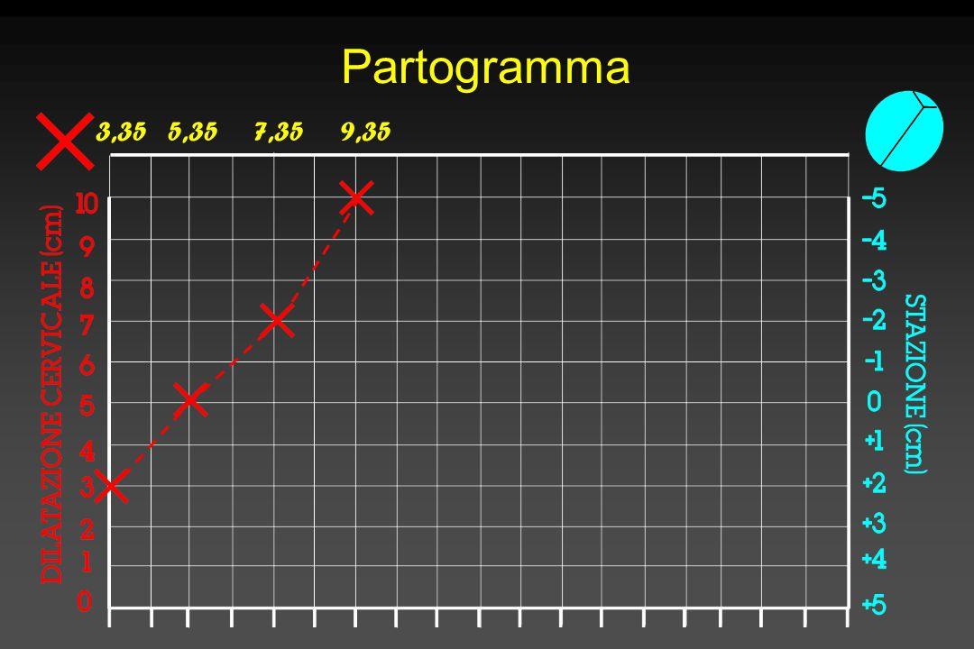 Partogramma 3,35 5,35 7,35 9,35