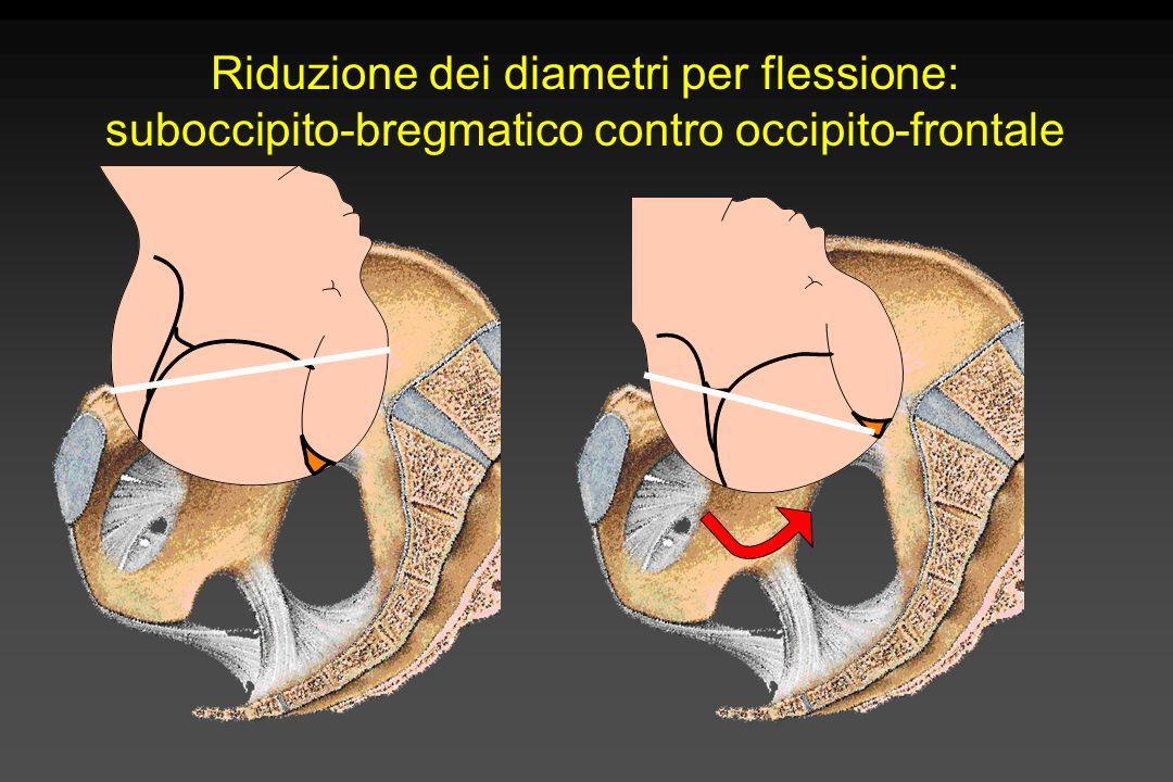 Riduzione dei diametri per flessione: suboccipito-bregmatico contro occipito-frontale