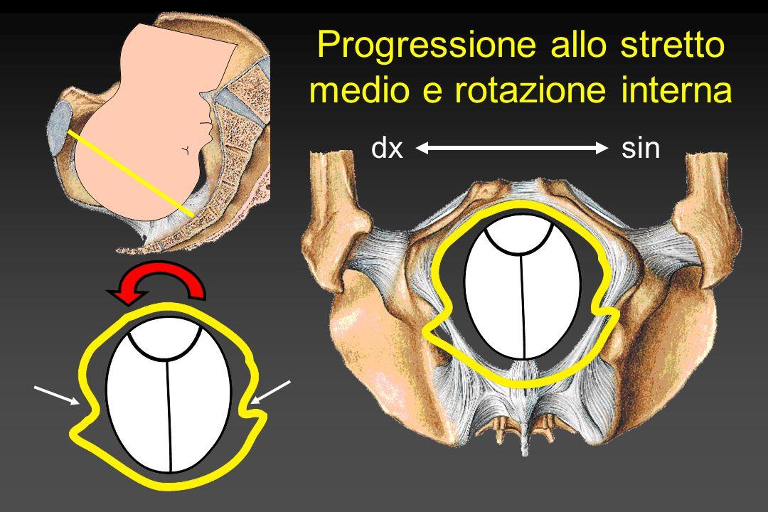 Progressione allo stretto medio e rotazione interna