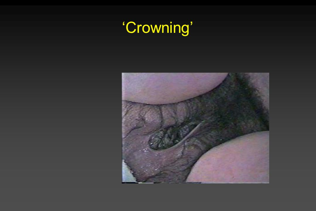 'Crowning'