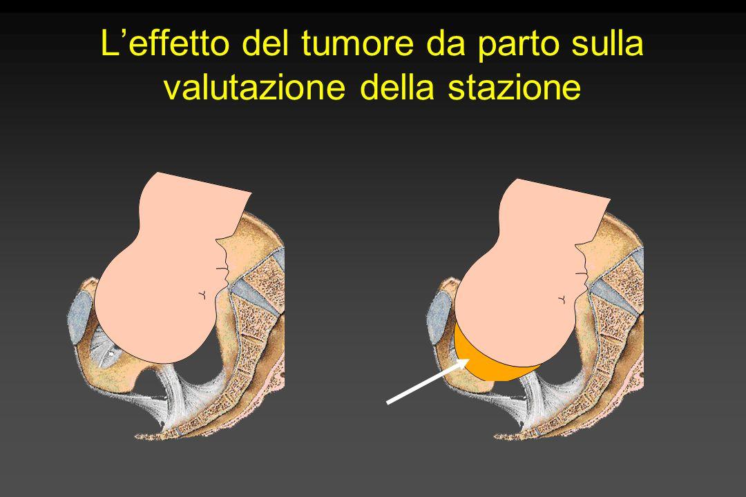 L'effetto del tumore da parto sulla valutazione della stazione