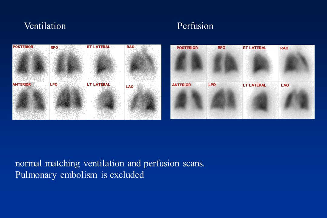 normal matching ventilation and perfusion scans.