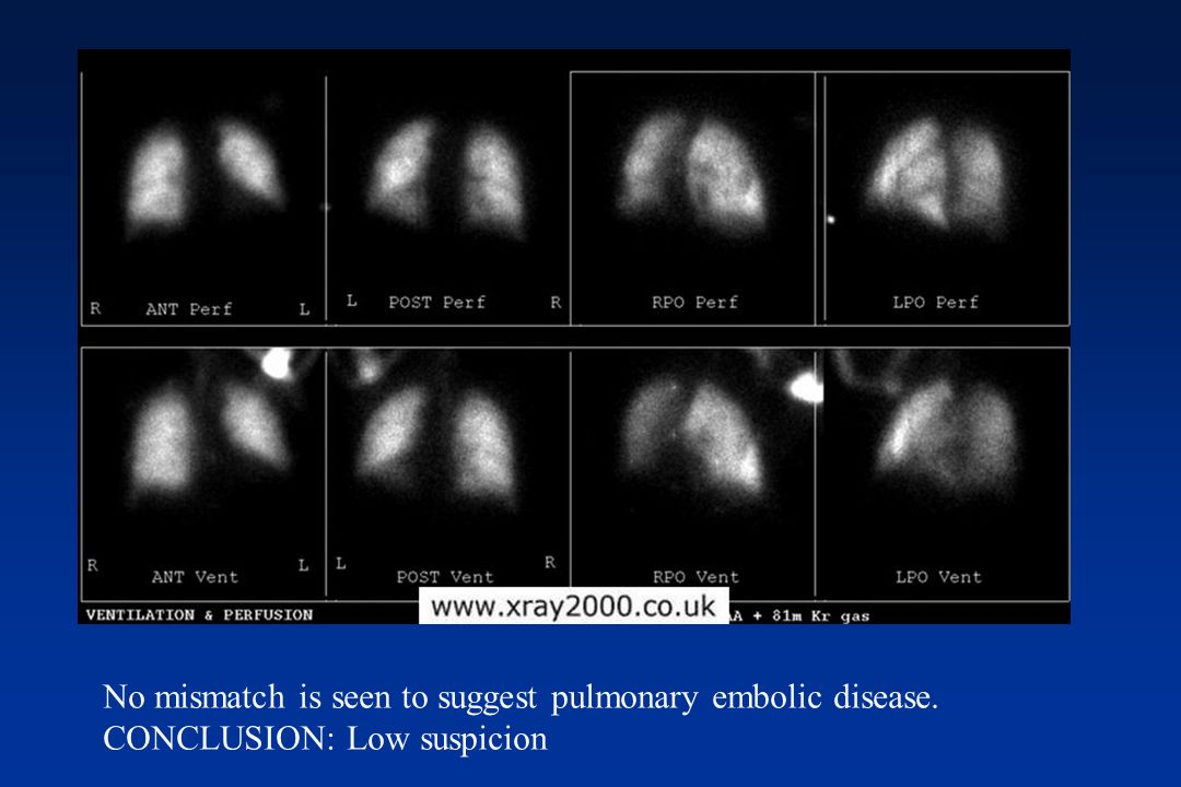 No mismatch is seen to suggest pulmonary embolic disease