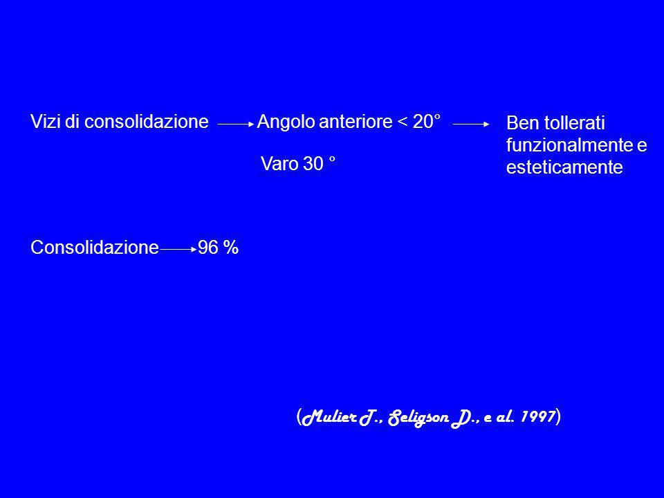 Vizi di consolidazione Angolo anteriore < 20°