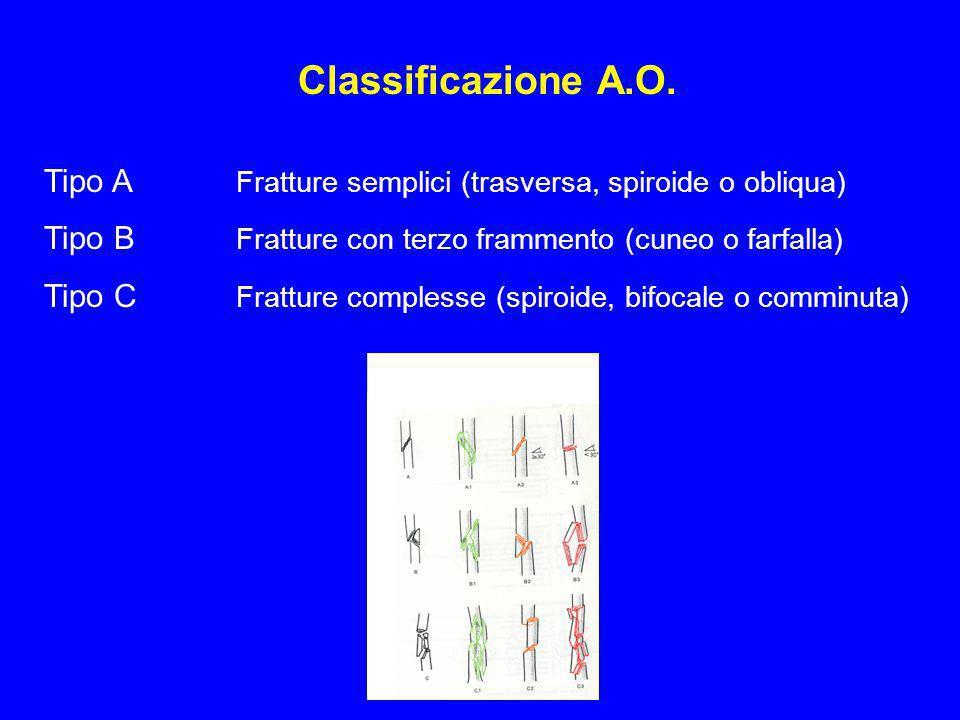 Classificazione A.O. Tipo A Fratture semplici (trasversa, spiroide o obliqua) Tipo B Fratture con terzo frammento (cuneo o farfalla)