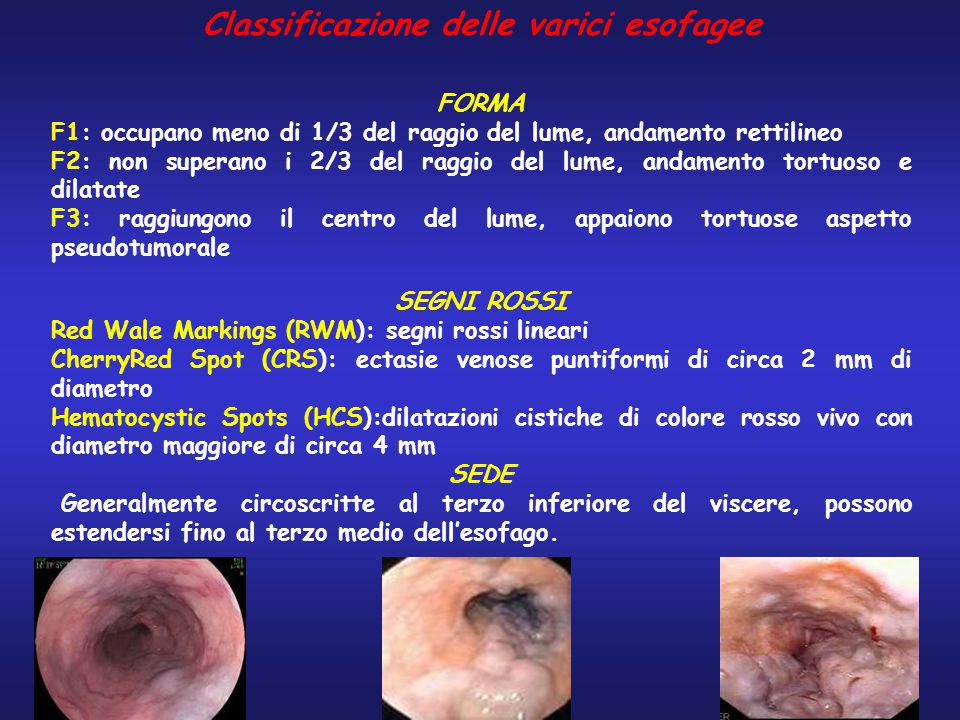 Classificazione delle varici esofagee