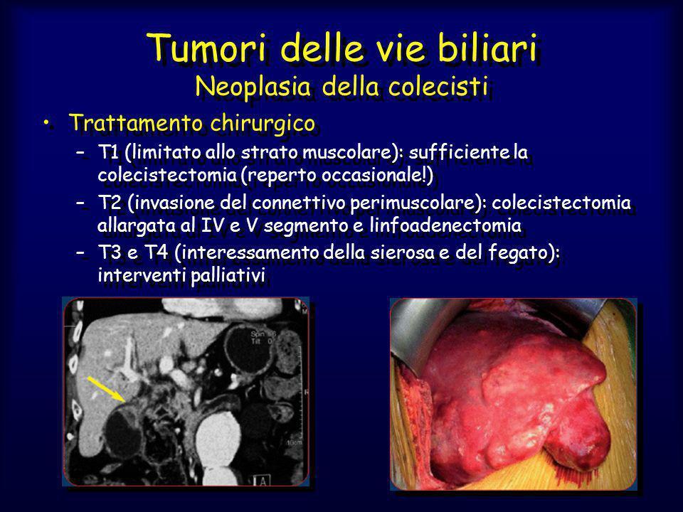 Tumori delle vie biliari Neoplasia della colecisti