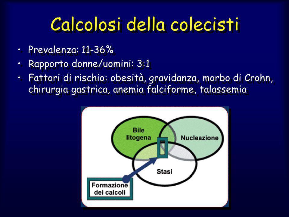 Calcolosi della colecisti