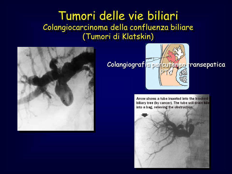 Colangiografia percutanea transepatica