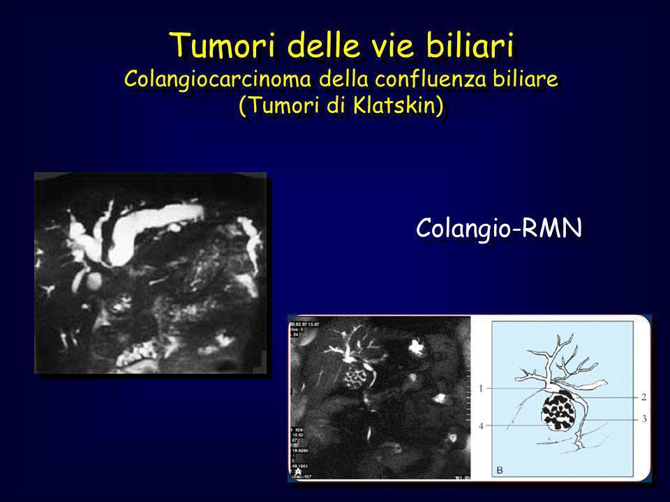 Tumori delle vie biliari Colangiocarcinoma della confluenza biliare (Tumori di Klatskin)