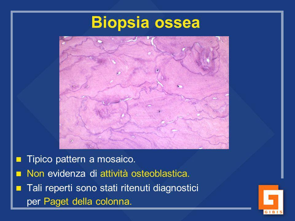 Biopsia ossea Tipico pattern a mosaico.