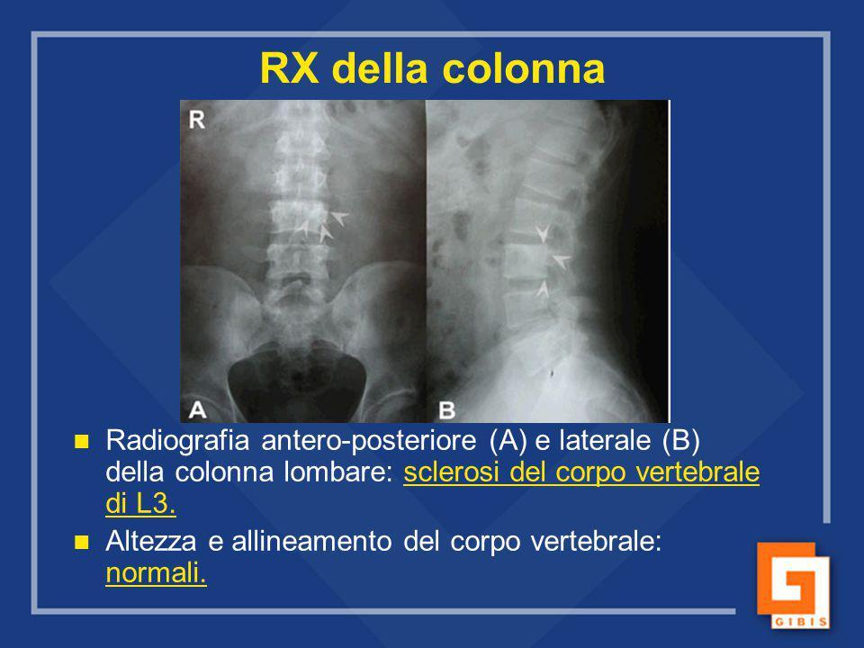 RX della colonna Radiografia antero-posteriore (A) e laterale (B) della colonna lombare: sclerosi del corpo vertebrale di L3.
