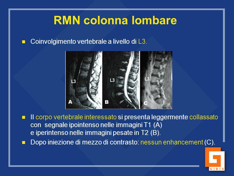 RMN colonna lombare Coinvolgimento vertebrale a livello di L3.