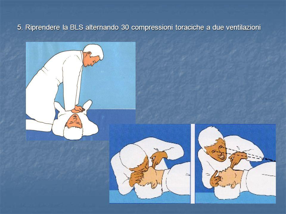 5. Riprendere la BLS alternando 30 compressioni toraciche a due ventilazioni