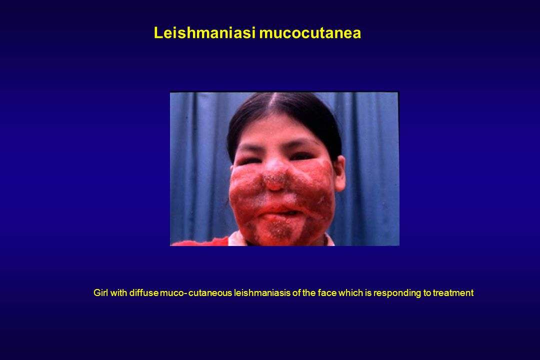 Leishmaniasi mucocutanea