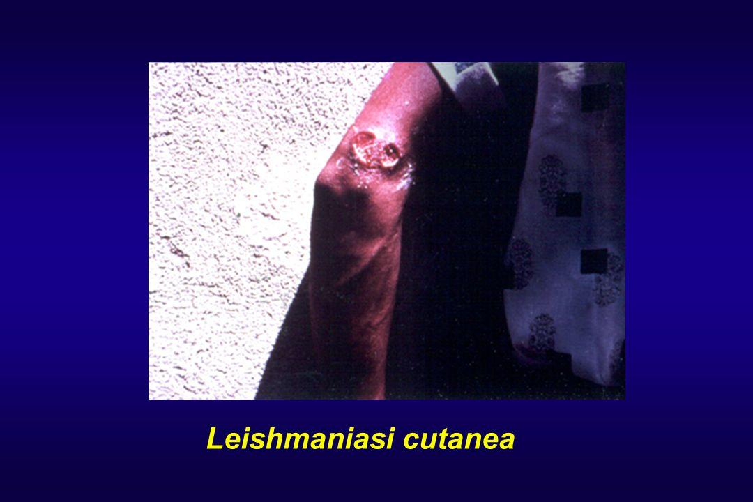 Leishmaniasi cutanea