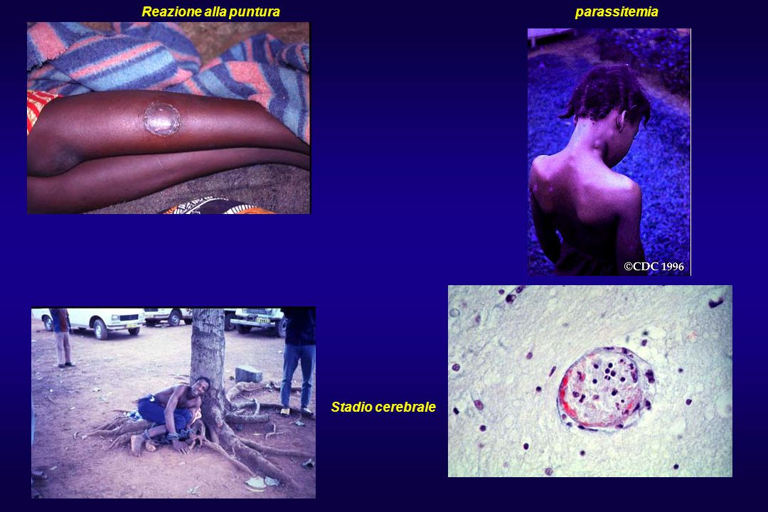 Reazione alla puntura parassitemia Stadio cerebrale
