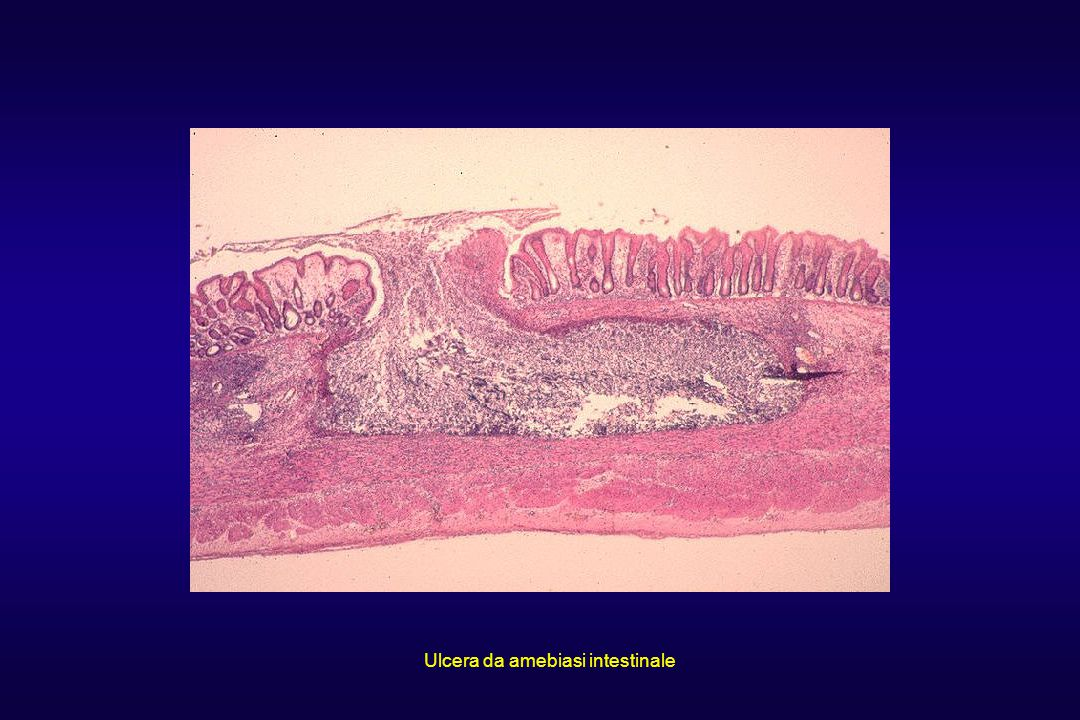 Ulcera da amebiasi intestinale