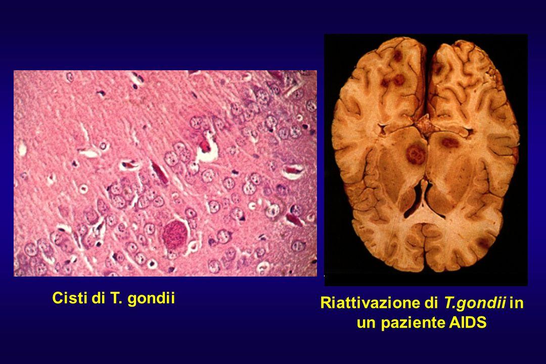 Riattivazione di T.gondii in un paziente AIDS