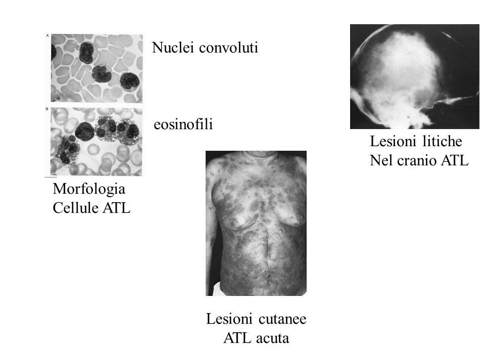 Nuclei convoluti eosinofili. Lesioni litiche. Nel cranio ATL. Morfologia. Cellule ATL. Lesioni cutanee.