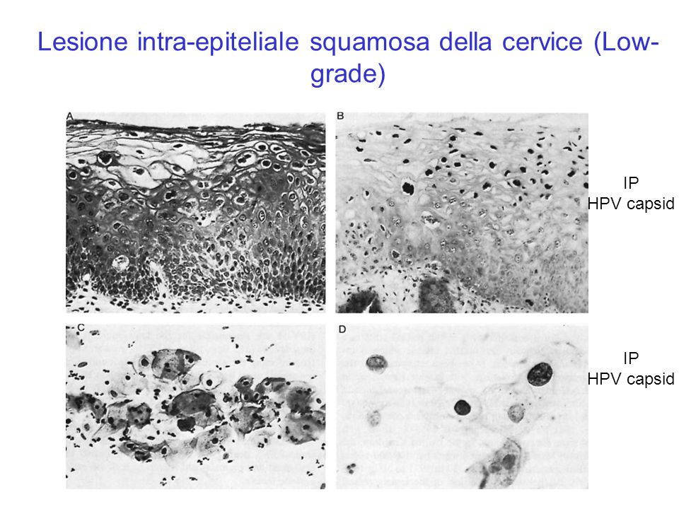 Lesione intra-epiteliale squamosa della cervice (Low-grade)