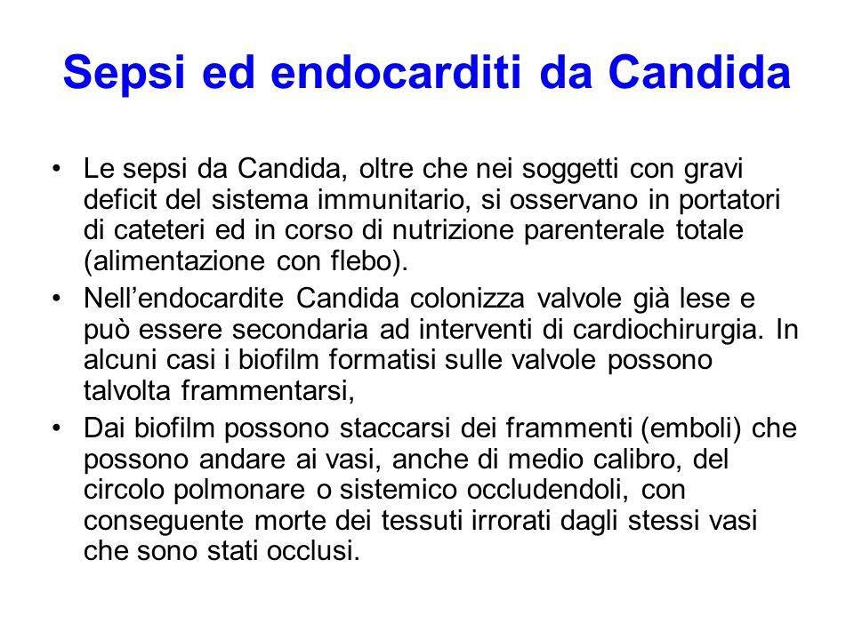 Sepsi ed endocarditi da Candida