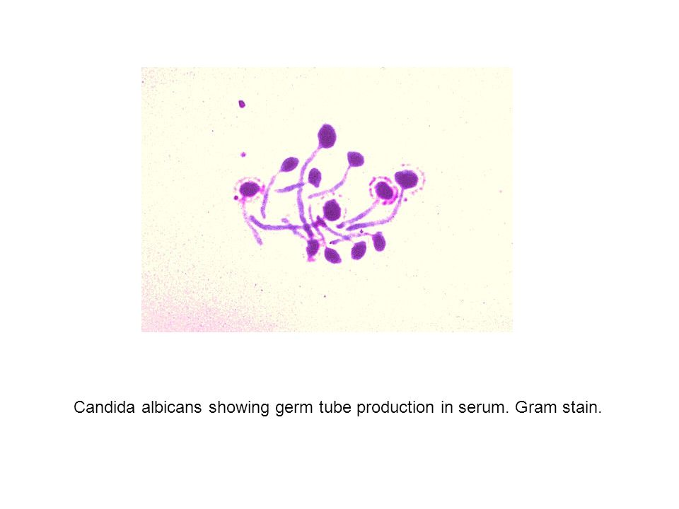 Candida albicans showing germ tube production in serum. Gram stain.